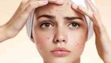 رژیم غذایی برای درمان جوشهای صورت